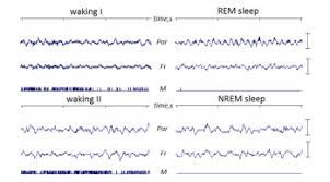 Rem Sleep Chart Rapid Eye Movement Sleep Wikipedia