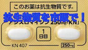 歯茎の腫れ 抗生物質 フロモックス 市販