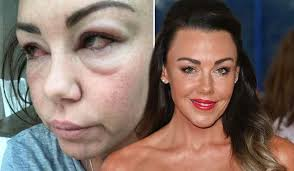 Michelle Heaton Shows The Full Effects Of Her Alcohol Addiction