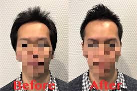 薄毛に悩む30代男性薄毛専門美容室でカットするとm字ハゲが改善する