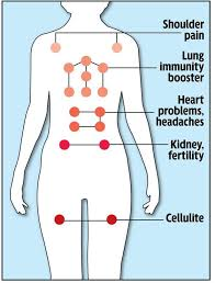 Hijama Cupping Points Chart Pin By Scarlet Rose On Hijama Cupping Therapy Cupping