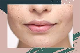 upper lip hair removal how to wax your