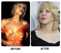 celebrity drug addict before and after. go back to the celebrity drug addiction before and after photos mainpage addict e