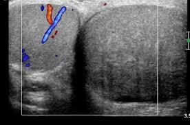 testicular torsion. right testicular torsion