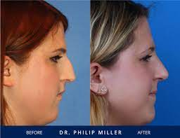 This, however, requires many stipulations the right question to be asking is not whether insurance follows the car or the driver, but whether or not other drivers will be covered by the. Does Health Insurance Cover Rhinoplasty In Nyc Rhinoplasty Nose Jobs Rhinoplasty Nose Job