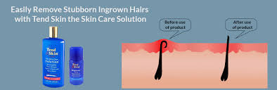 infected ingrown hair causes and