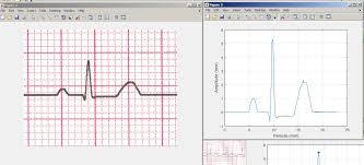 Ecg Paper Image To Vector File Exchange Matlab Central