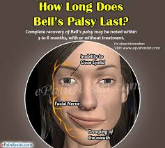 what is bell's palsy and how do you get it