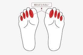 足 の 指 しびれ