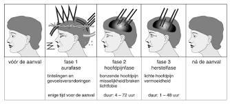 hoofdpijn lichtflitsen