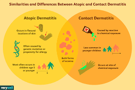 atopic and contact dermais how they