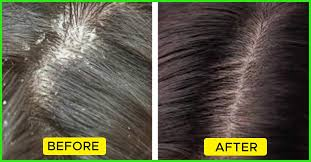 Different Types Of Dandruff And How To Prevent Them