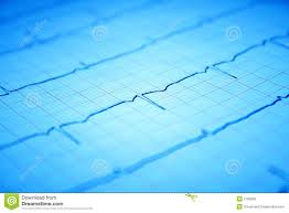 Heart Ecg Graph On Paper Stock Image Image Of Medicine 2790539