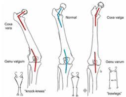 Coxa Vara Lower Extremity Deformities Varus Valgus Physical