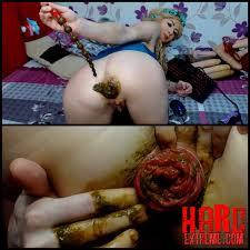 Masturbation sex anal prolapse
