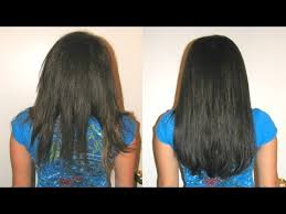stop treat control prevent hair fall