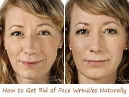 lemon juice for wrinkles