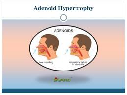 Ppt Adenoid Hypertrophy Causes Symptoms Diagnosis