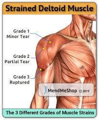 deltoid strain