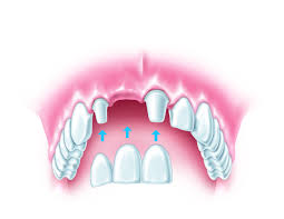 Dental Bridges in Gloucestershire