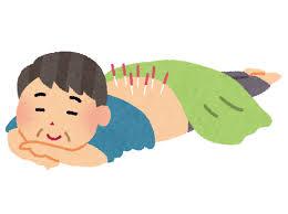 「鍼治療」の画像検索結果