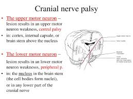cranial nerve palsy the upper motor neuron lesion results in an upper motor neuron weakness