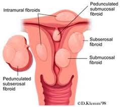 fibroid picture of it