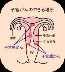 子宮 体 が ん ブログ
