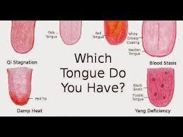 Healthy Tongue Vs Unhealthy Tongue How To Read Your Tongue