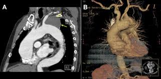 hybrid operation for combined aortic arch aneurysm and aortic root view hi res