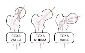 Coxa Vara File Coxa Valga Norma Vara 000 Png Wikimedia Commons