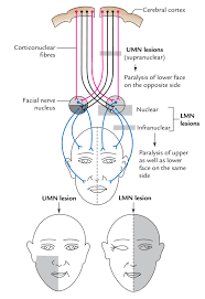 Easy Notes On Facial Nerve Learn In Just 4 Minutes