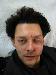 richard coyle from bbc tv show strange which maks use of swelling provided by a dental plumper rather than an appliance makeup by jan sewell