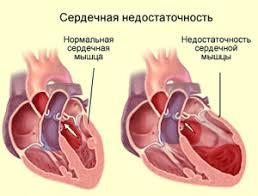 Анемии Реферат Сердечная недостаточность