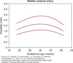 Mca Doppler Normal Values Chart Doppler Interrogation Of The Fetal Circulation Fleischers