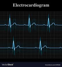 Normal And Bradycardial Ekg Charts