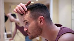 Male Pattern Baldness Stages Custom Decorating Ideas