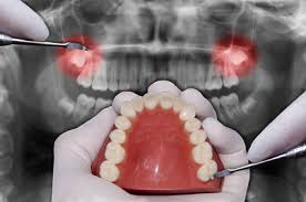 Teeth Setting Oral Surgery In Gimli Lakeview Dental Centre