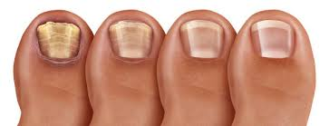 1,774 Toenail Fungus Stock Photos, Pictures & Royalty-Free Images - iStock
