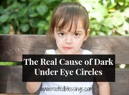 the cause of dark under eye circles