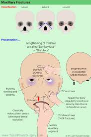 Le Fort Fracture Maxillary Fractures Classified By Le Fort Use This Diagram To Help