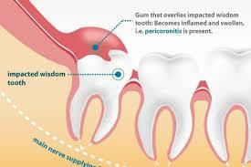 do you need wisdom tooth surgery how to prepare