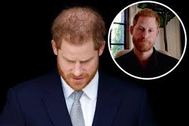 Prince Harry's new hair plugs! | New Idea Magazine