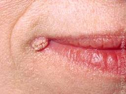 warts sattvam speciality clinic