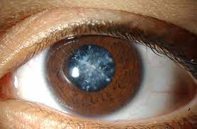 Can Cataracts cause Blindness? | Delhi Eye Center