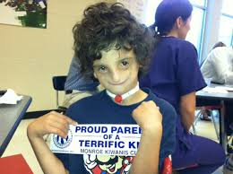 cranio acceptance month an unforgettable letter from a boy with treacher collins syndrome