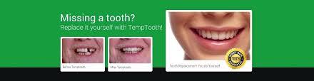 diy veneers kit tooth replacement kit