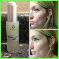 it works exfoliating peel before and after it works exfoliating peel it works wonders want better skin