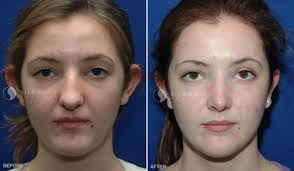 rhinoplasty nose surgery sydney before and after gallery dr nettle <span>before< span>