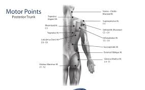 Motor Points For Electrical Stimulation Chart Motor Point Map